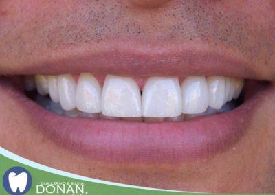 Fresno-Dentist-Ca-Dr-DOnan-2