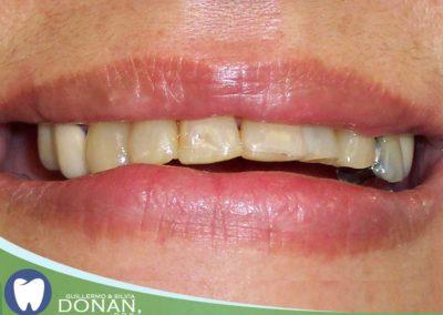 Fresno-Dentist-Ca-Dr-DOnan-3