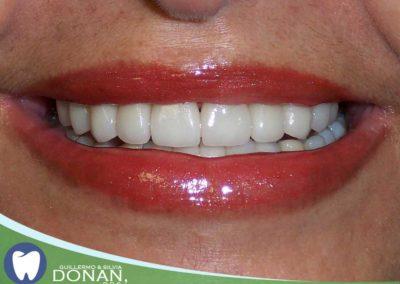 Fresno-Dentist-Ca-Dr-DOnan-4