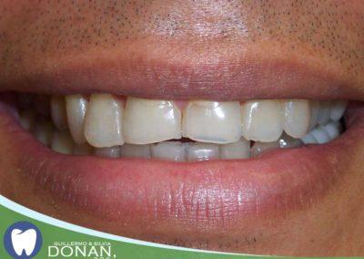 Fresno-Dentist-Ca-Dr-DOnan