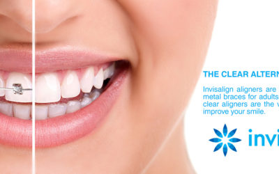 Invisalign: Know Before You Go  | Dentist Fresno CA