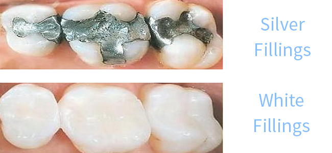 Silver's Not your Best Option | Fresno Dentist