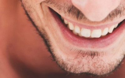 Clear Braces For Adults | Clear Braces In Fresno CA
