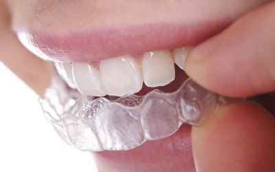 Invisalign: The Clear Alternative | Invisalign in Fresno