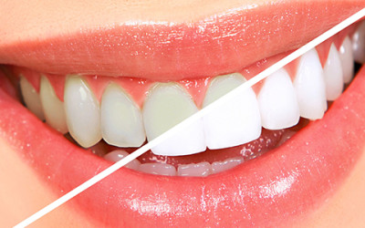 Whitening For Every Smile! Get Yours | Fresno Dentist