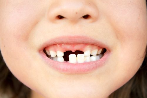 Everything About Baby Teeth | Dentist Fresno CA