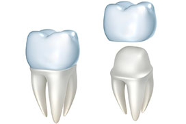 What Dental Crowns are made of?