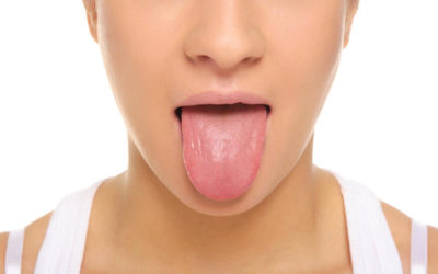Sore or painful tongue  | Dentist in Fresno CA