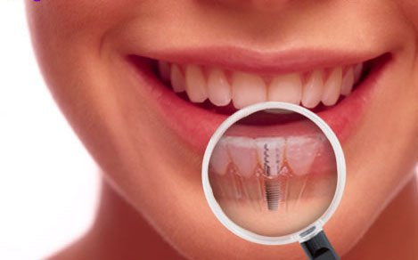 What Are Dental Implants? | Dentist Fresno CA
