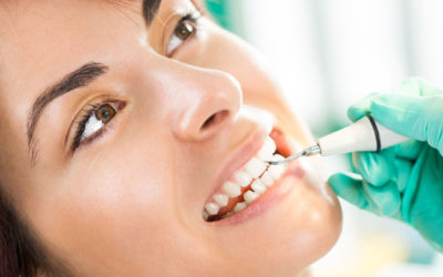 How Often Should I Go to the Dentist for a Teeth Cleaning? | Dentist in Fresno CA