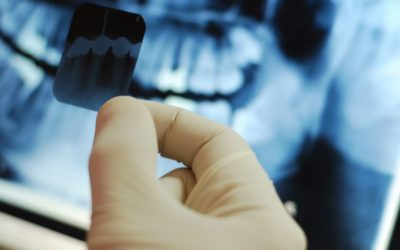 How Safe Are Dental X-Rays?