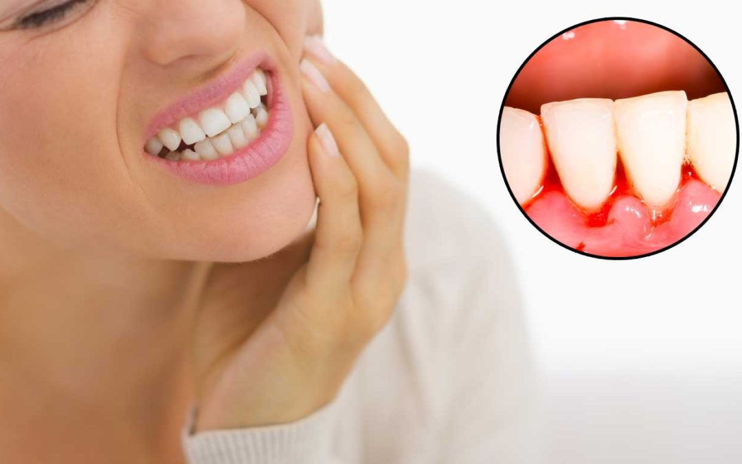 Bleading gums, what it means and what you need to do.
