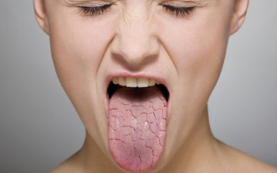 Cause, Effect, And Prevention Of Dry Mouth | Dentist Fresno CA