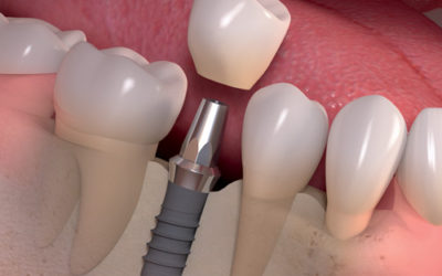Dental Implants | Dentist Fresno