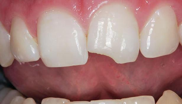 Broken teeth, what to do?