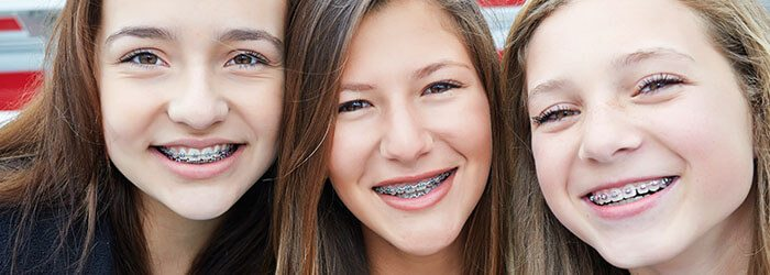 What is the best age for braces? | Dentist in Fresno CA
